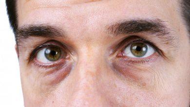 نصائح فعالة للتخلص من الإجهاد والاسمرار حول العينين