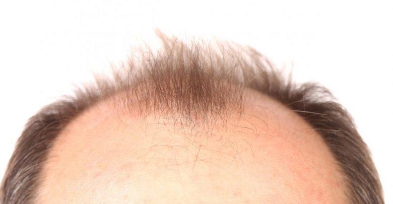 نصائح ذهبية لتقليل تساقط الشعر