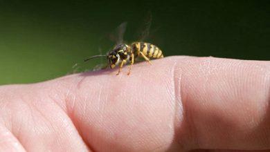 لدغات النحل
